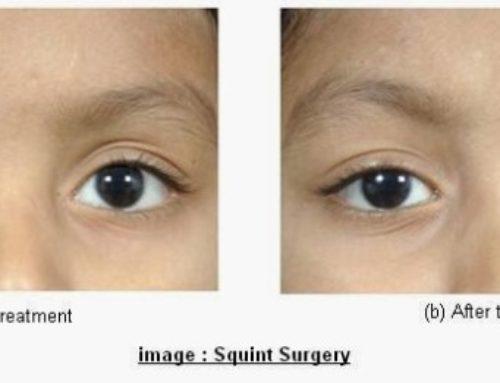 Squint Surgery