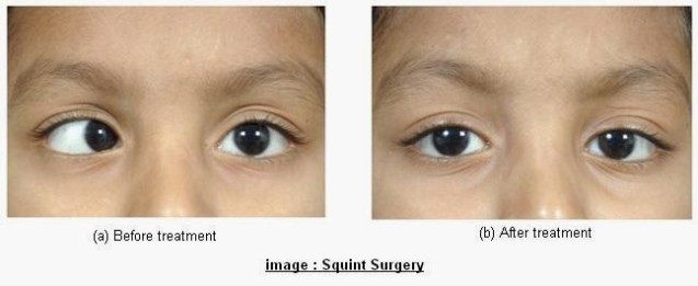 Lid Surgery Blepharoplasty Dr Mahommed Ismail Motala